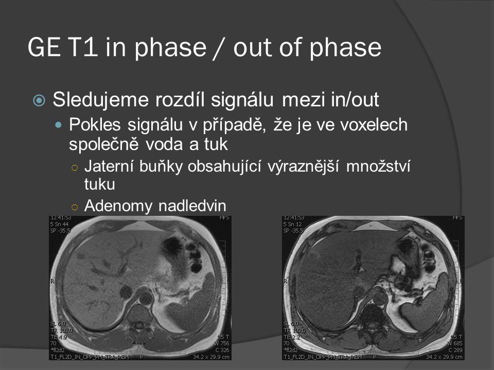 GE T1 in phase / out of phase  Sledujeme rozdíl signálu mezi in/out  Pokles signálu v případě, že je ve voxelech společně voda a tuk ○ Jaterní buňky