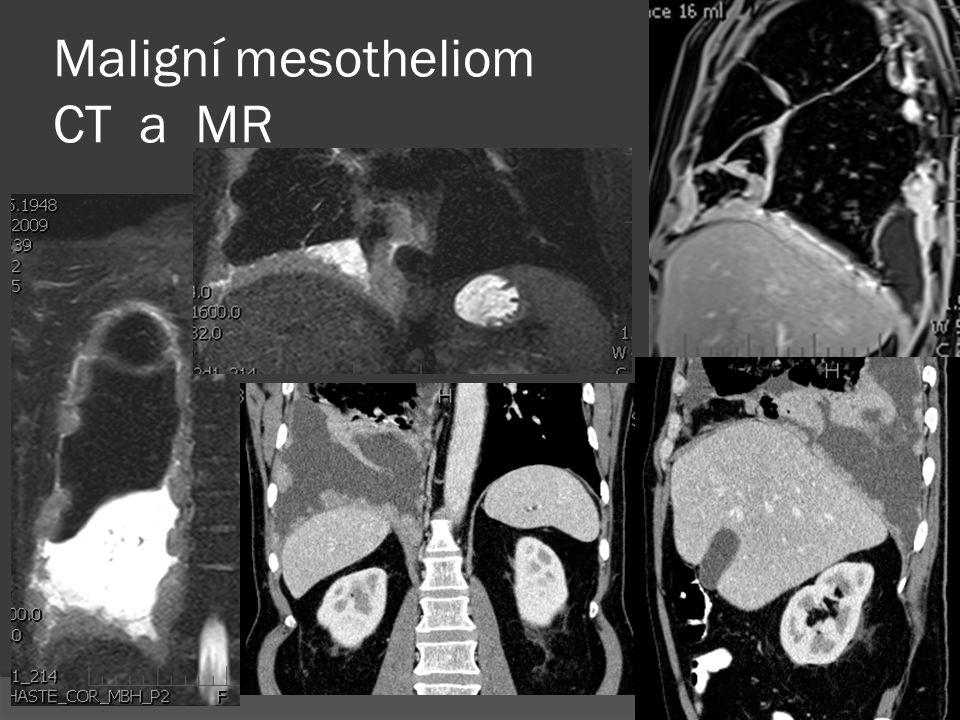 Maligní mesotheliom CT a MR