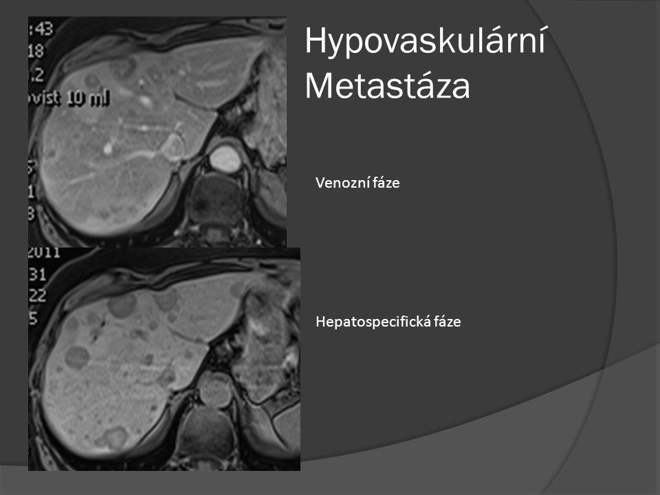 Hypovaskulární Metastáza Venozní fáze Hepatospecifická fáze