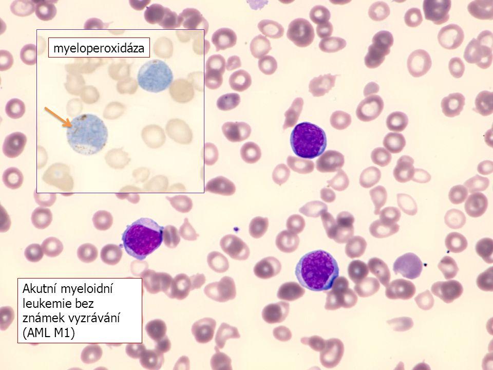 myeloperoxidáza Akutní myeloidní leukemie bez známek vyzrávání (AML M1)