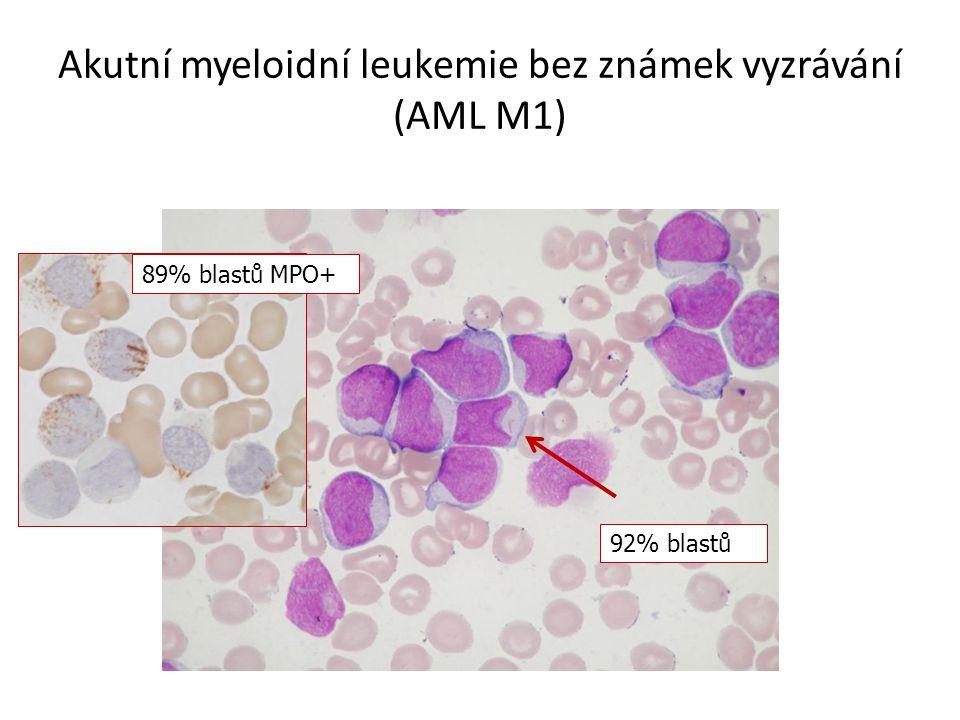 Akutní myeloidní leukemie bez známek vyzrávání (AML M1) 92% blastů 89% blastů MPO+