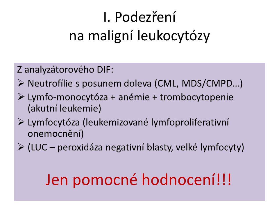 I. Podezření na maligní leukocytózy Z analyzátorového DIF:  Neutrofílie s posunem doleva (CML, MDS/CMPD…)  Lymfo-monocytóza + anémie + trombocytopen