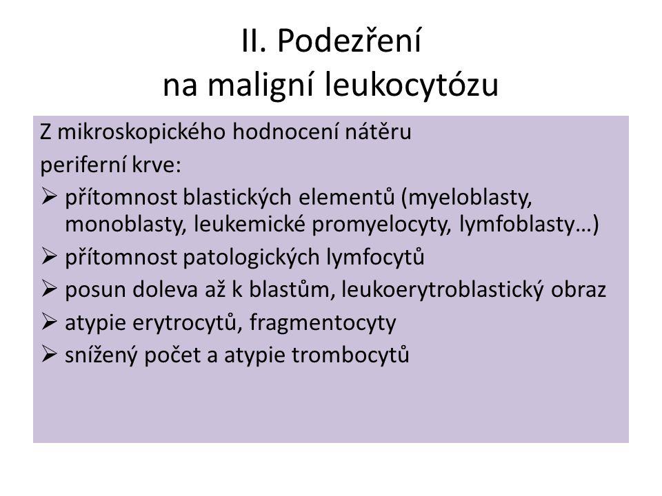 II. Podezření na maligní leukocytózu Z mikroskopického hodnocení nátěru periferní krve:  přítomnost blastických elementů (myeloblasty, monoblasty, le