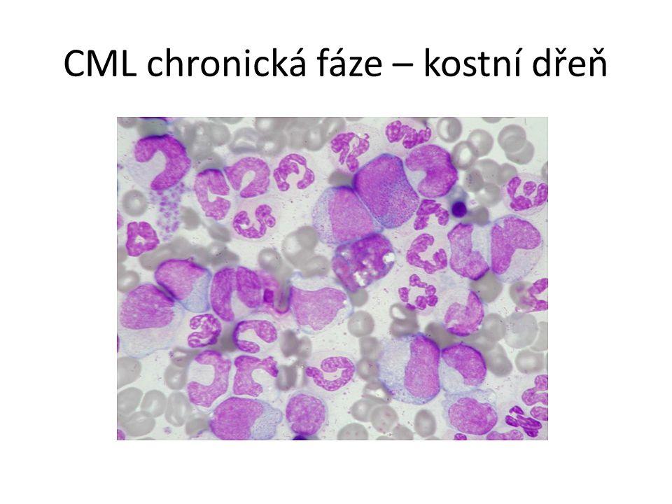 CML chronická fáze – kostní dřeň