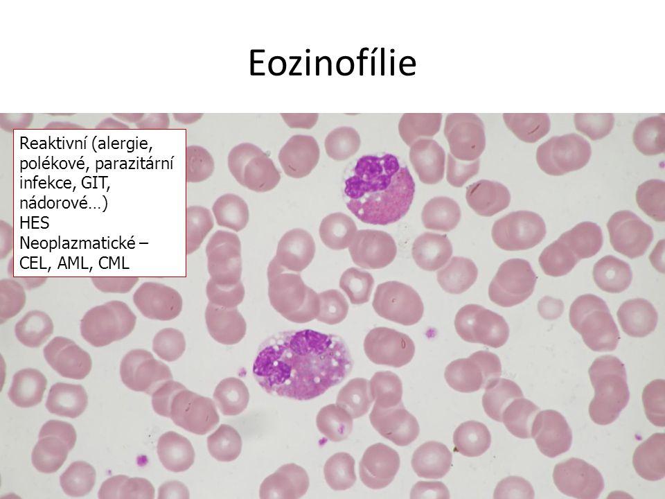 Eozinofílie Reaktivní (alergie, polékové, parazitární infekce, GIT, nádorové…) HES Neoplazmatické – CEL, AML, CML