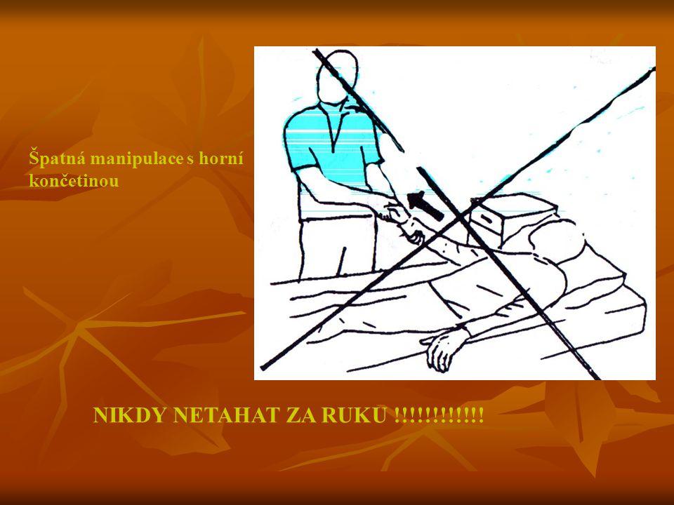 Špatná manipulace s horní končetinou NIKDY NETAHAT ZA RUKU !!!!!!!!!!!!