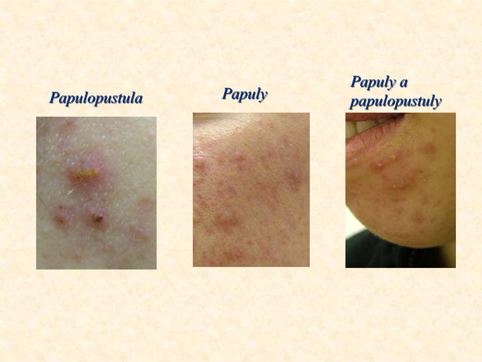 2. Zvláštní formy akné  acne fulminans – těžké forma konglobovaného akné s horečkou a bolestmi kloubů  acne inversa – konglobované akné na tváři a c