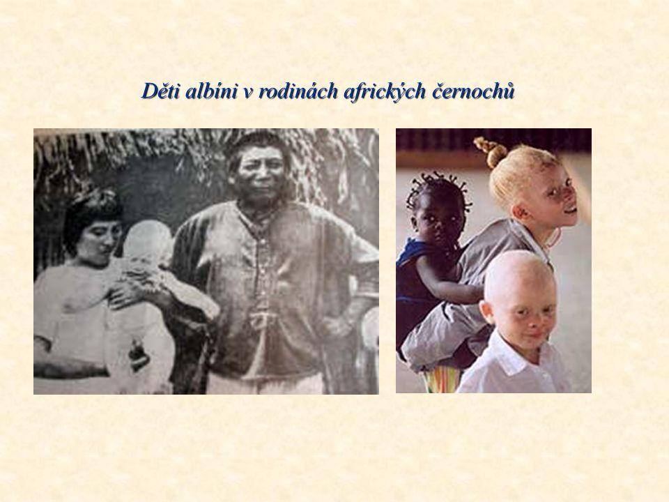 Černošský chlapec s albinismem