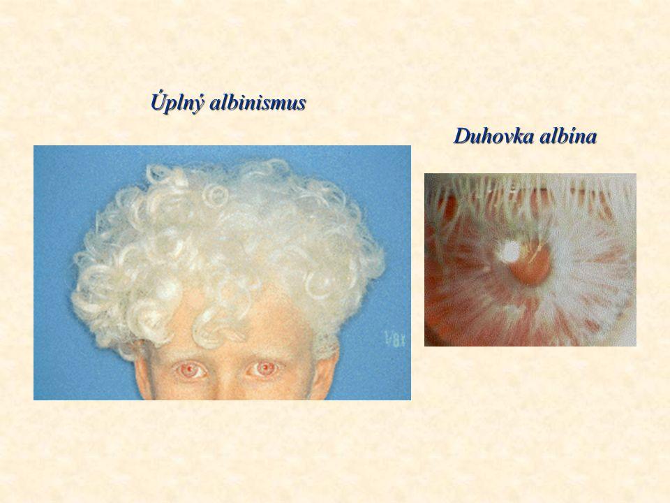 Albín mezi sourozenci Černošská žena s albinismem