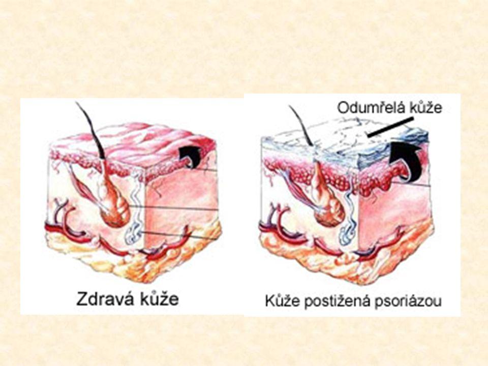  Psoriáza = lupénka  chronické nenakažlivé onemocnění kůže  průběh: kožní buňky určitých částí těla se obnovují mnohem rychleji než normálně → nema