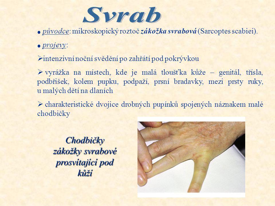 1.Svrab 2.Plísňová onemocnění kůže a nehtů 3.Plané neštovice, spalničky
