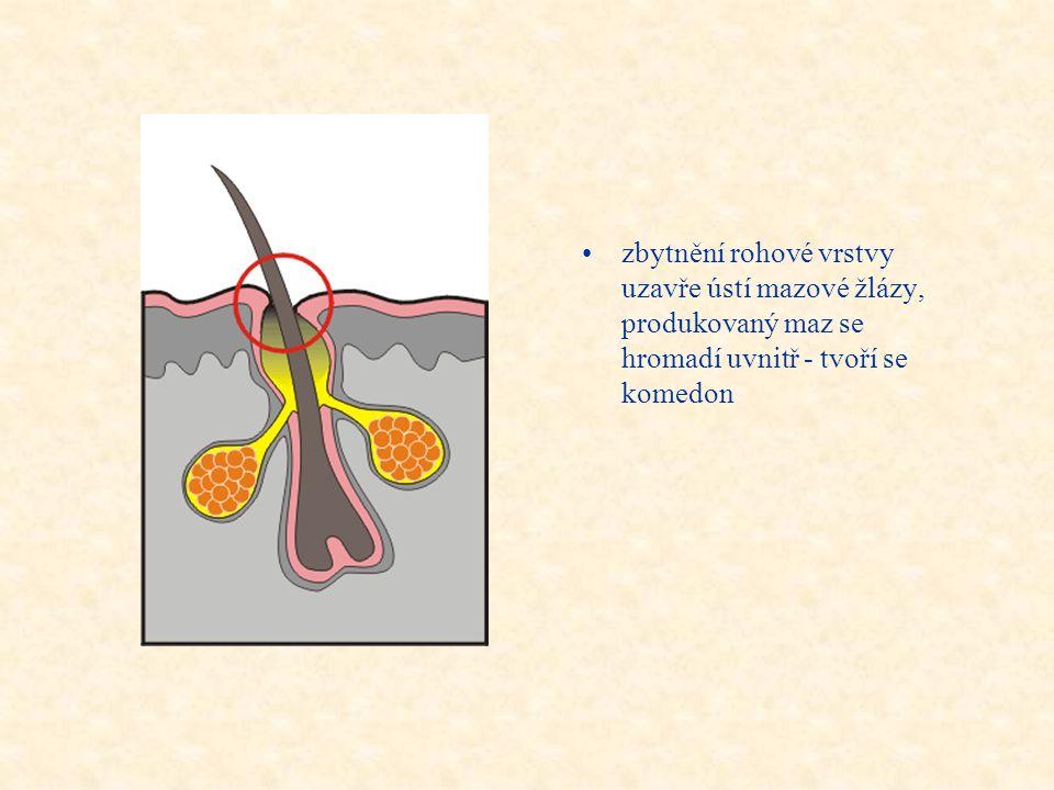 Průběh zanícení mazové žlázky •při normální tloušťce rohové vrstvy pokožky je vytlačován produkovaný maz podél vlasu na povrch