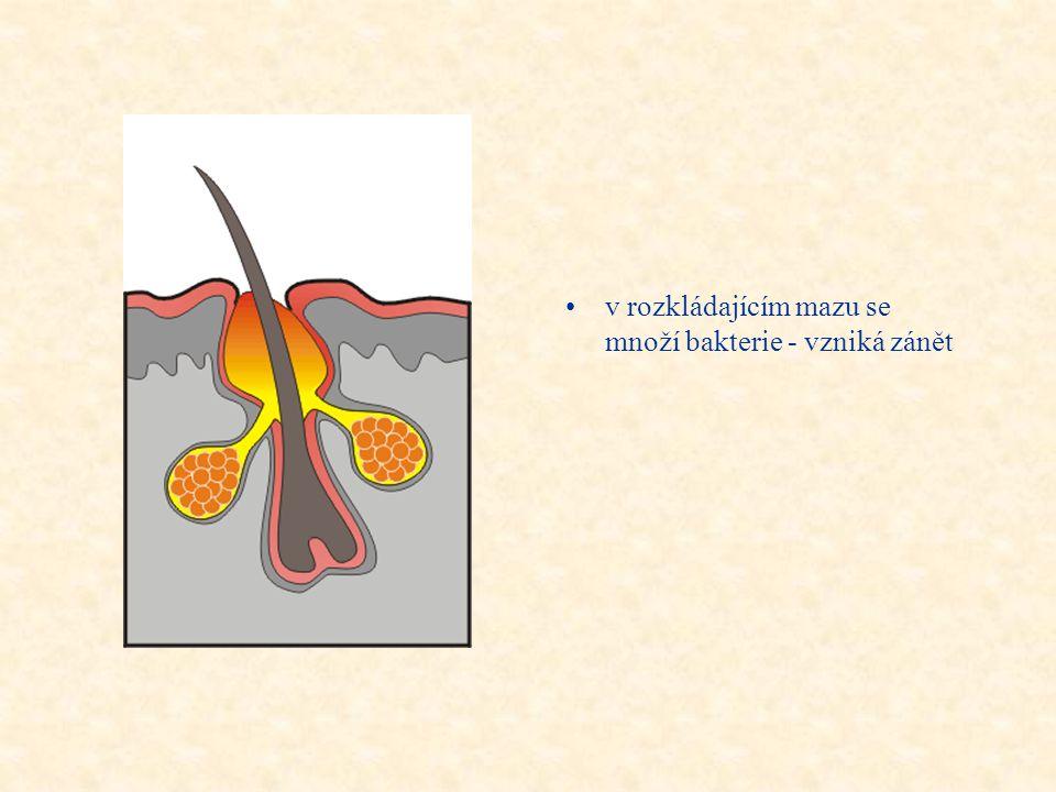 •zbytnění rohové vrstvy uzavře ústí mazové žlázy, produkovaný maz se hromadí uvnitř - tvoří se komedon