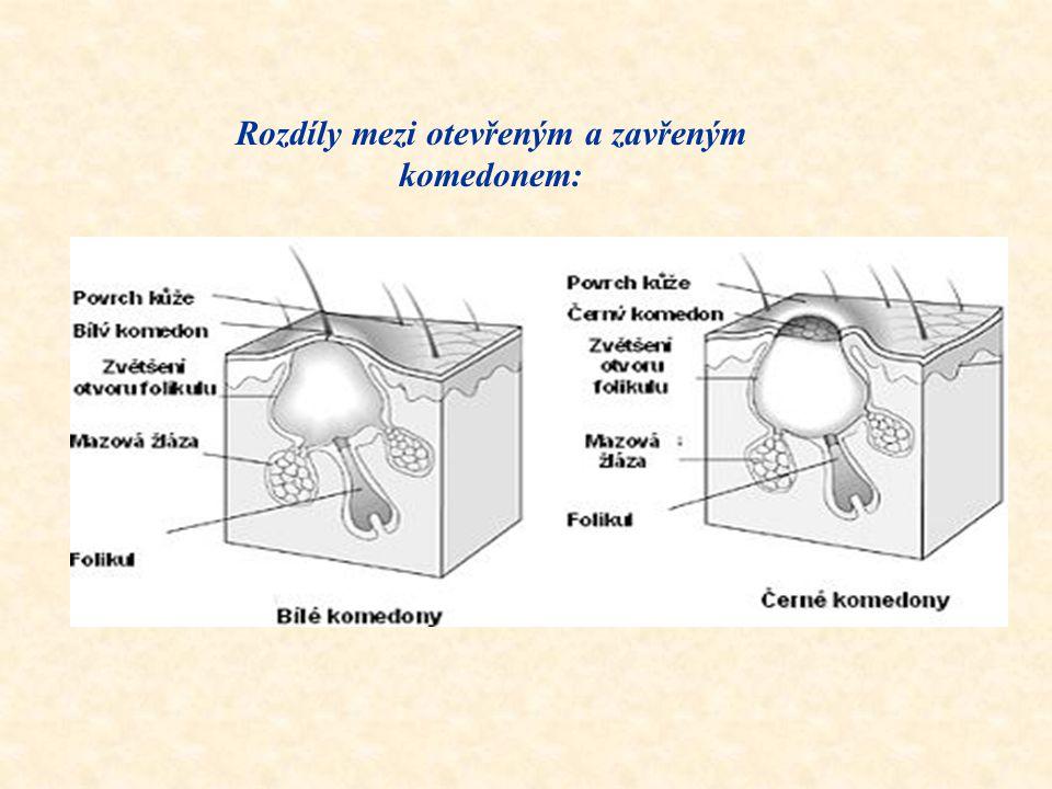 Základní druhy akné podle stupně postižení : 1. Pravé akné  akné komedonové – bílé a černé tečky na povrchu kůže (komedony)  akné papulo-pustolozní