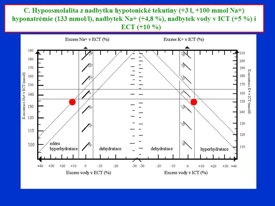 C. Hypoosmolalita z nadbytku hypotonické tekutiny (+3 l, +100 mmol Na+) hyponatrémie (133 mmol/l), nadbytek Na+ (+4,8 %), nadbytek vody v ICT (+5 %) i