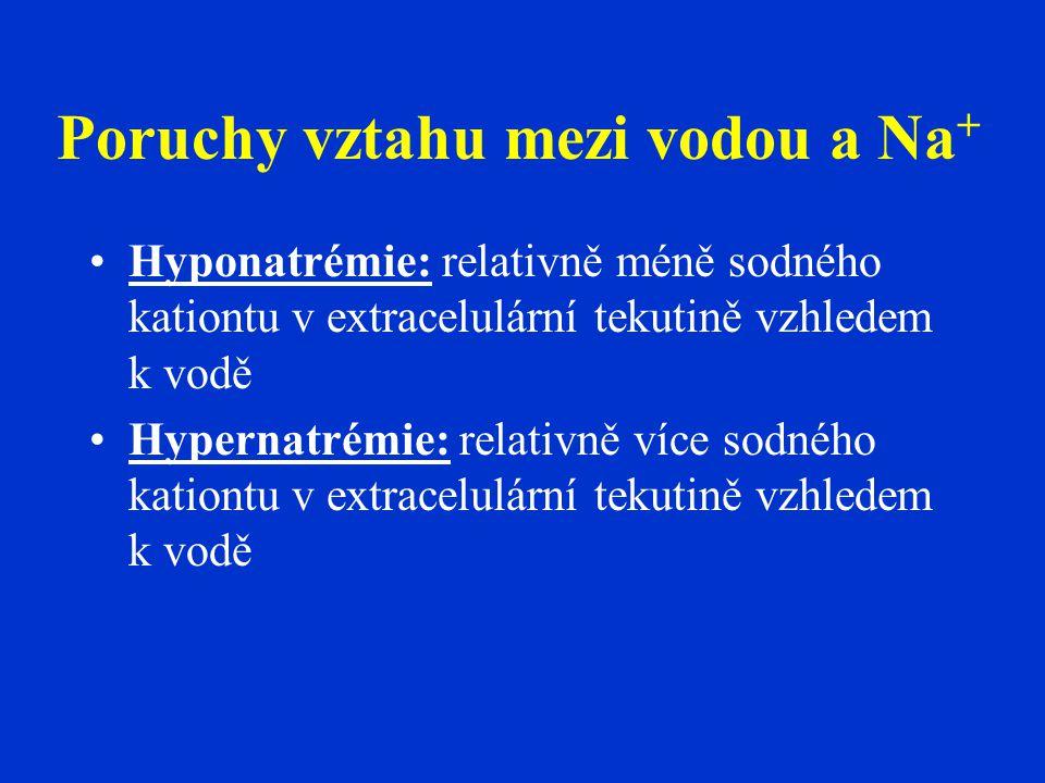Poruchy vztahu mezi vodou a Na + •Hyponatrémie: relativně méně sodného kationtu v extracelulární tekutině vzhledem k vodě •Hypernatrémie: relativně více sodného kationtu v extracelulární tekutině vzhledem k vodě
