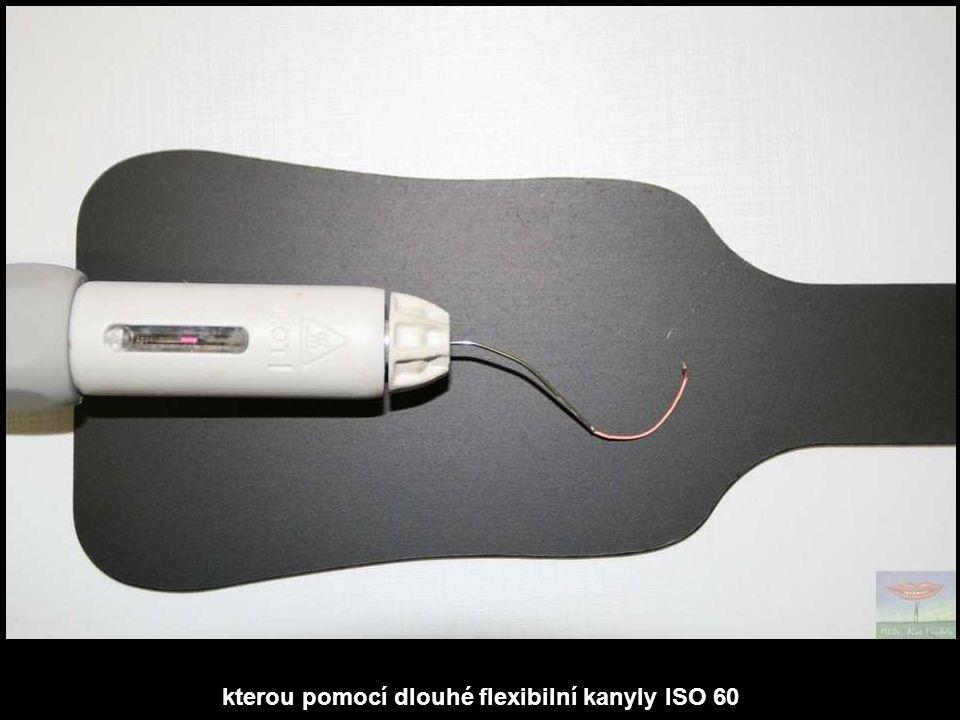 kterou pomocí dlouhé flexibilní kanyly ISO 60