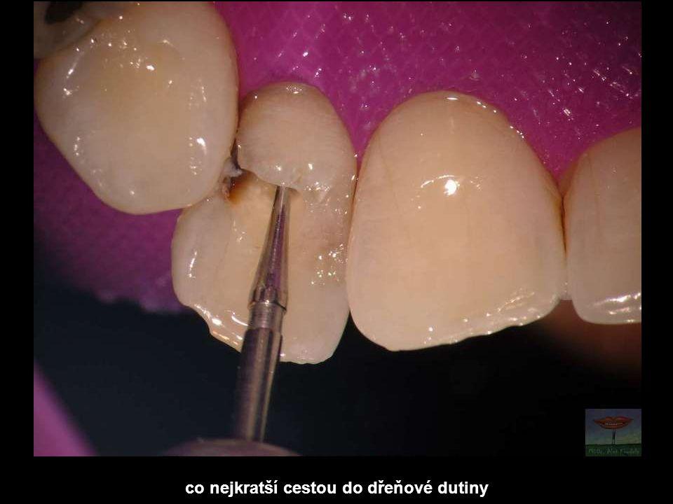 a stejně jako do postele nechodíme v zablácených holinkách, tak endodoncii nebudeme dělat skrz zubní kaz