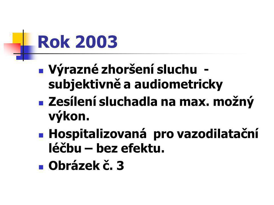 Rok 2003  Výrazné zhoršení sluchu - subjektivně a audiometricky  Zesílení sluchadla na max. možný výkon.  Hospitalizovaná pro vazodilatační léčbu –