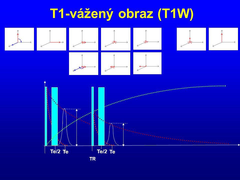 T1-vážený obraz (T1W) Te/2 Te TR Te/2 Te