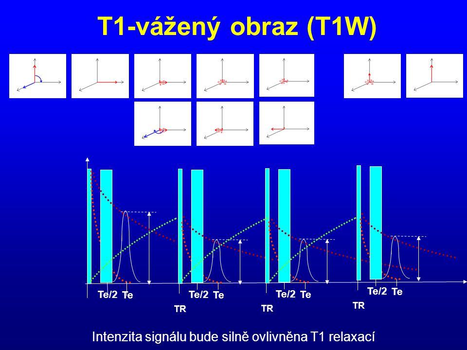 T1-vážený obraz (T1W) Te/2 Te TR Te/2 Te TR Te/2 Te TR Te/2 Te Intenzita signálu bude silně ovlivněna T1 relaxací