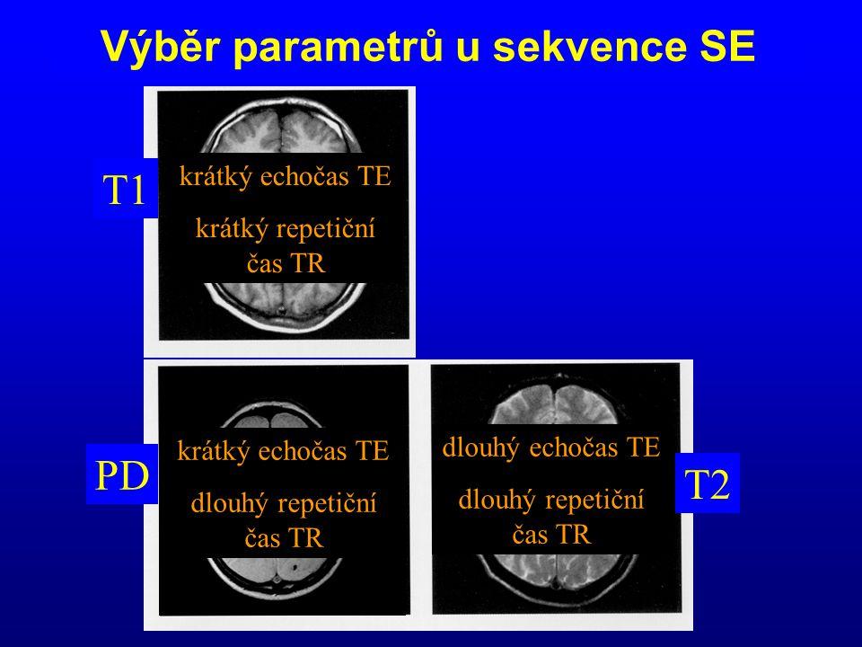 T1 PD T2 Výběr parametrů u sekvence SE krátký echočas TE krátký repetiční čas TR krátký echočas TE dlouhý repetiční čas TR dlouhý echočas TE dlouhý re