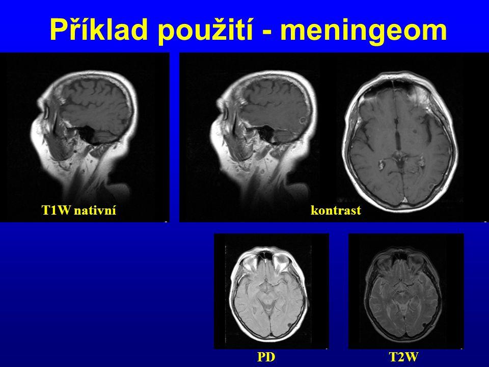 Příklad použití - meningeom PD T2W T1W nativníkontrast