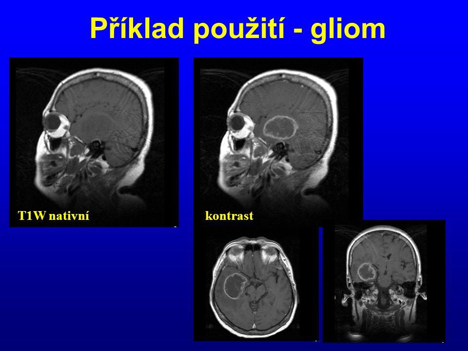 Příklad použití - gliom T1W nativníkontrast