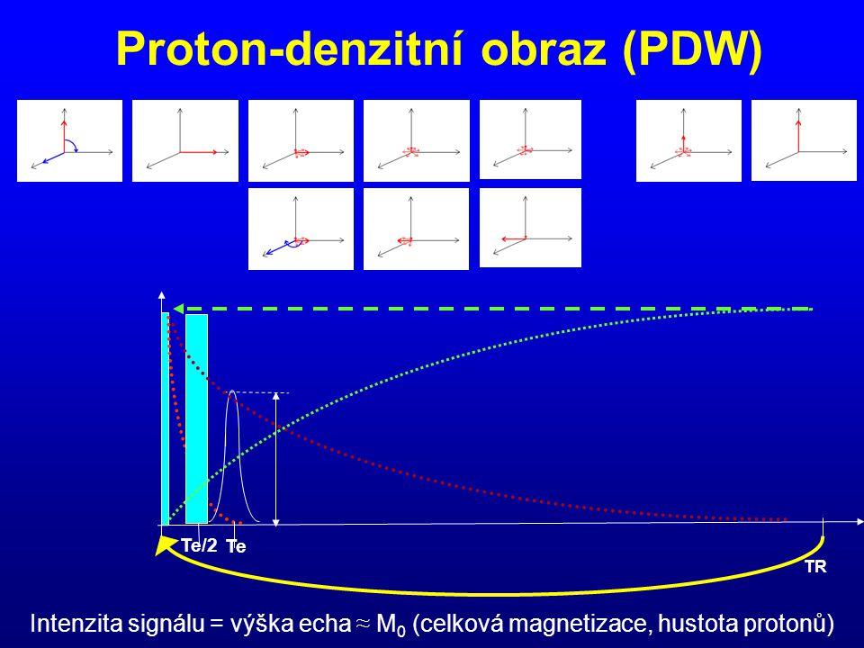 Proton-denzitní obraz (PDW) Te/2 Te TR Intenzita signálu = výška echa ≈ M 0 (celková magnetizace, hustota protonů)