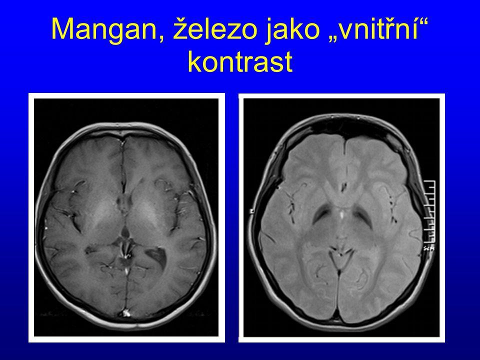 """Mangan, železo jako """"vnitřní"""" kontrast"""