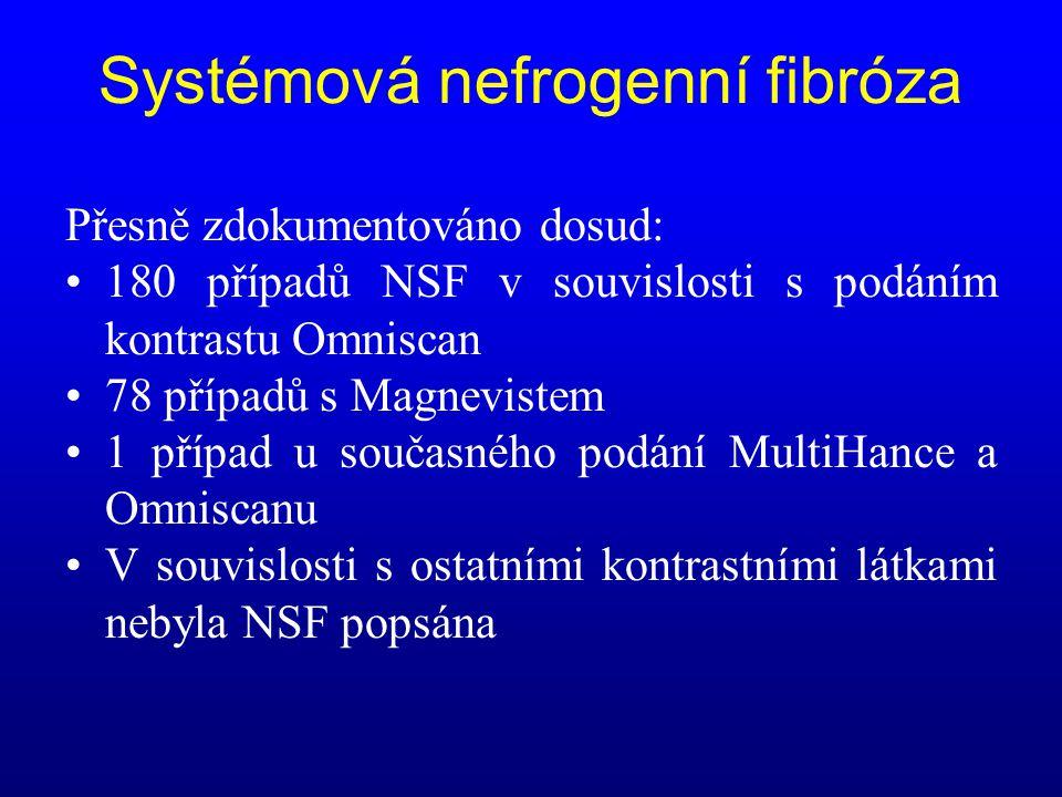 Systémová nefrogenní fibróza Přesně zdokumentováno dosud: •180 případů NSF v souvislosti s podáním kontrastu Omniscan •78 případů s Magnevistem •1 pří
