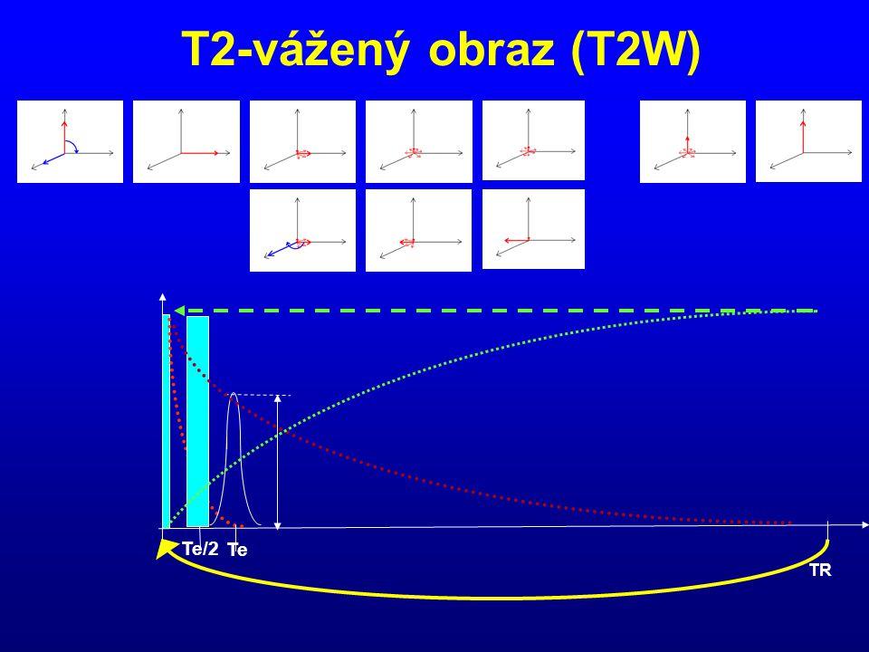 T2-vážený obraz (T2W) Te/2 Te TR