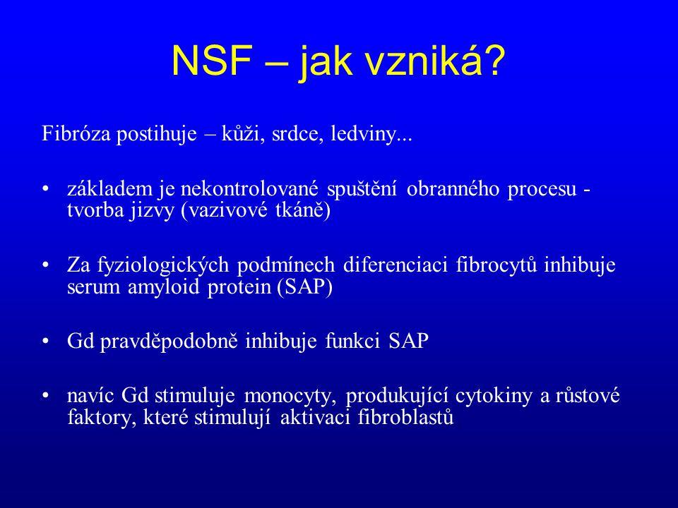 NSF – jak vzniká? Fibróza postihuje – kůži, srdce, ledviny... •základem je nekontrolované spuštění obranného procesu - tvorba jizvy (vazivové tkáně) •
