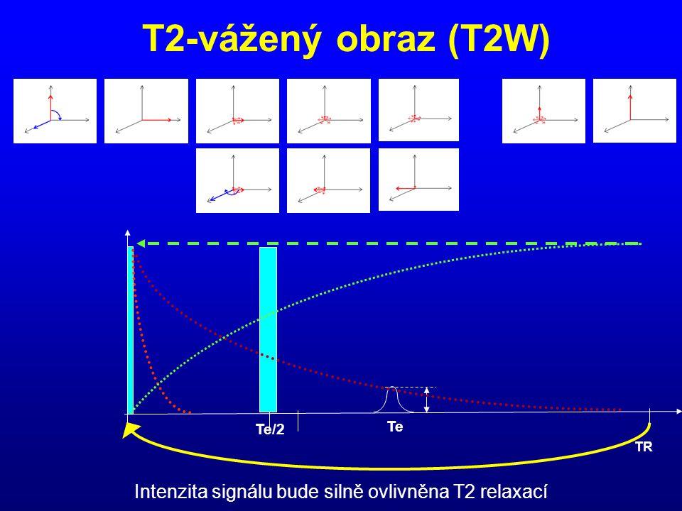 T2-vážený obraz (T2W) Te/2 Te TR Intenzita signálu bude silně ovlivněna T2 relaxací