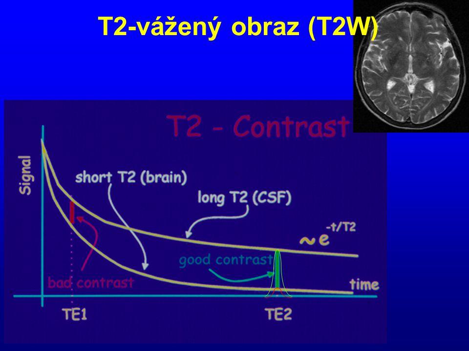 T2-vážený obraz (T2W)
