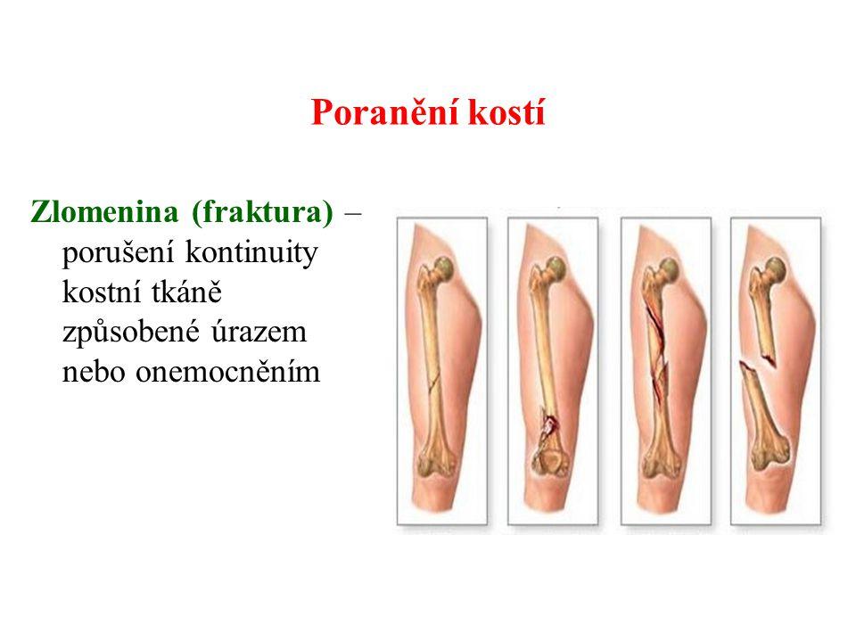 Poranění kostí Zlomenina (fraktura) – porušení kontinuity kostní tkáně způsobené úrazem nebo onemocněním