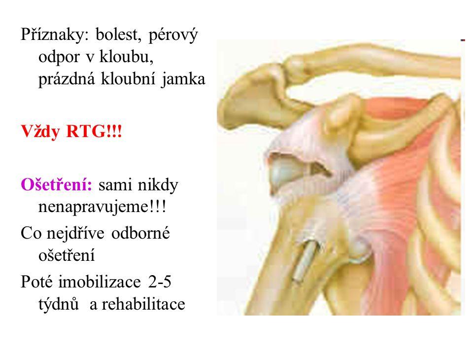 Příznaky: bolest, pérový odpor v kloubu, prázdná kloubní jamka Vždy RTG!!.