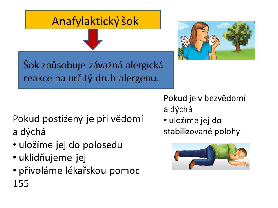 Pokud postižený je při vědomí a dýchá • uložíme jej do polosedu • uklidňujeme jej • přivoláme lékařskou pomoc 155 Anafylaktický šok Šok způsobuje záva