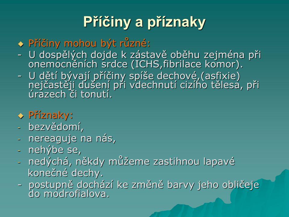 Křeče  Křeče mohou mít jakýkoliv původ (často epilepsie).