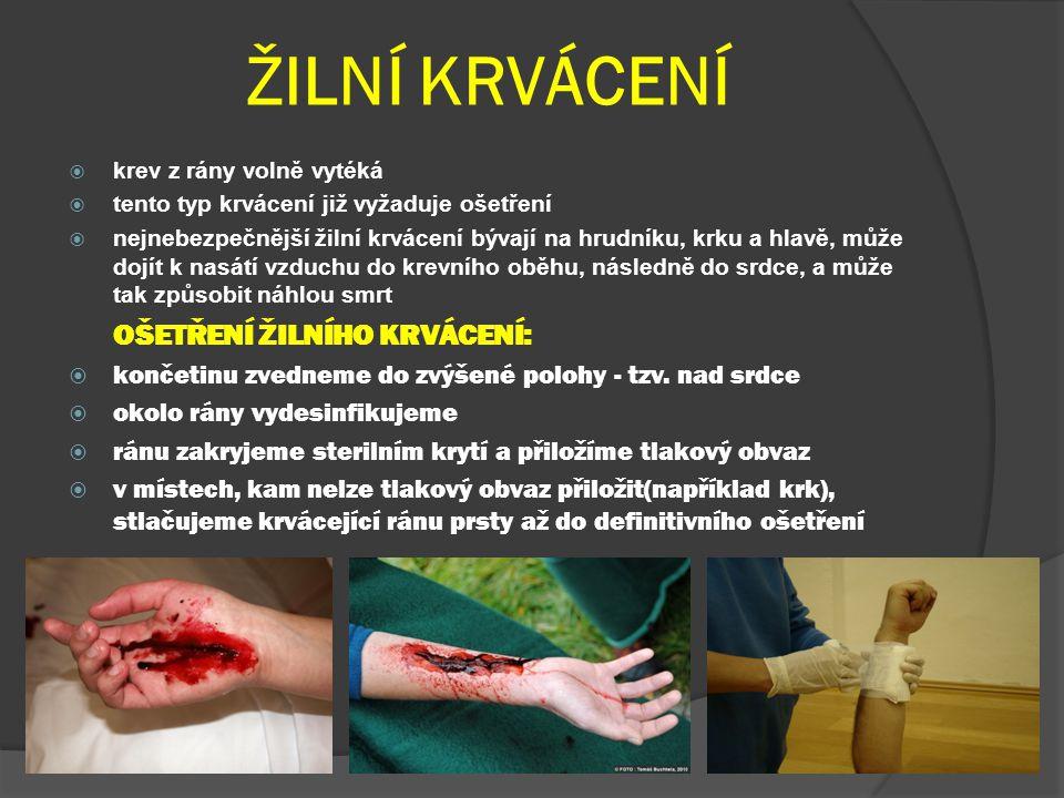 TEPENNÉ KRVÁCENÍ  krev z rány rytmicky vystřikuje  poranění je životu nebezpečné OŠETŘENÍ TEPENNÉHO PORANĚNÍ:  okamžitě stlačíme tepnu přímo v ráně  končetinu zatáhneme zaškrcovadlem  vytvoříme tlakový obvaz a zaškrcovadlo odejmeme  končetinu uvedeme do zvýšené polohy - tzv.