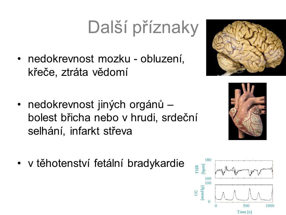 Další příznaky •nedokrevnost mozku - obluzení, křeče, ztráta vědomí •nedokrevnost jiných orgánů – bolest břicha nebo v hrudi, srdeční selhání, infarkt