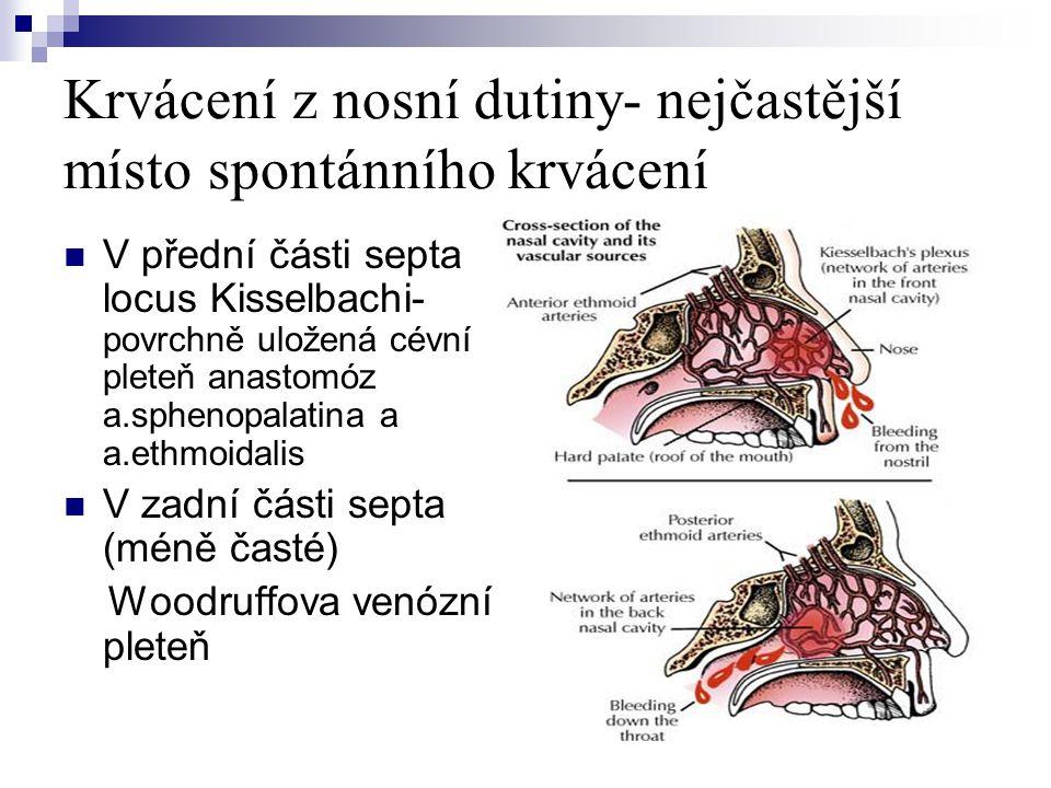 Krvácení z nosní dutiny- nejčastější místo spontánního krvácení  V přední části septa locus Kisselbachi- povrchně uložená cévní pleteň anastomóz a.sp