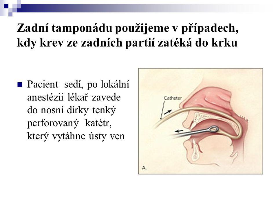 Zadní tamponádu použijeme v případech, kdy krev ze zadních partií zatéká do krku  Pacient sedí, po lokální anestézii lékař zavede do nosní dírky tenk