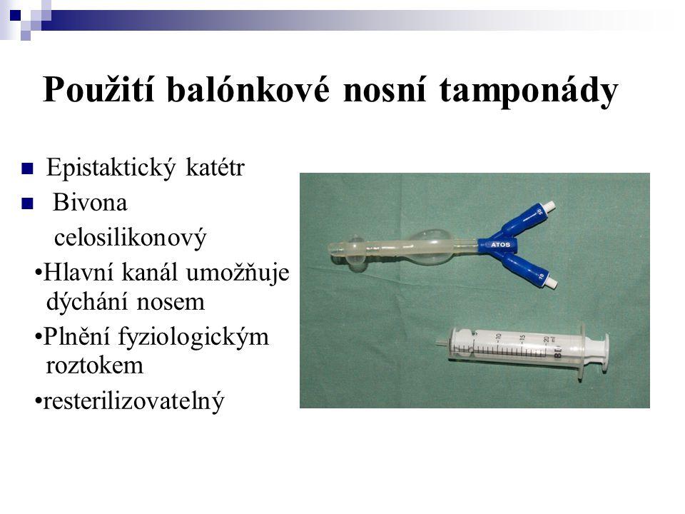 Použití balónkové nosní tamponády  Epistaktický katétr  Bivona celosilikonový •Hlavní kanál umožňuje dýchání nosem •Plnění fyziologickým roztokem •r