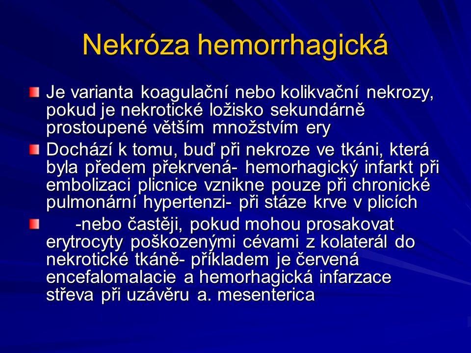 Nekróza hemorrhagická Je varianta koagulační nebo kolikvační nekrozy, pokud je nekrotické ložisko sekundárně prostoupené větším množstvím ery Dochází