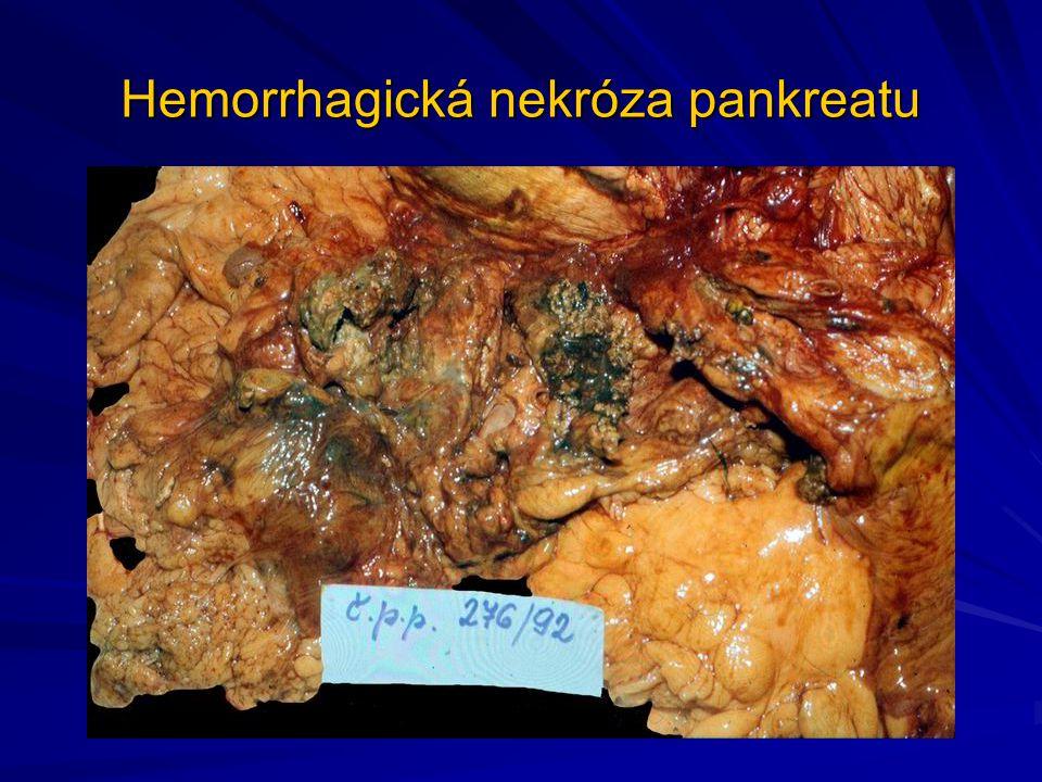 Tuková nekróza, liponekróza Jde o zvláštní kategorii udávanou někdy v medicínské literatuře Vzniká například po im podání léků do hýždového svalstva, po úrazu či bez zjistitelné příčiny (např.
