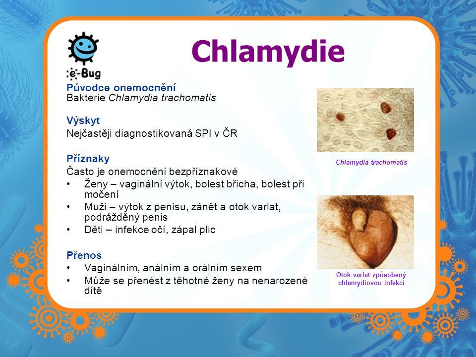 Chlamydie Původce onemocnění Bakterie Chlamydia trachomatis Výskyt Nejčastěji diagnostikovaná SPI v ČR Příznaky Často je onemocnění bezpříznakové •Žen