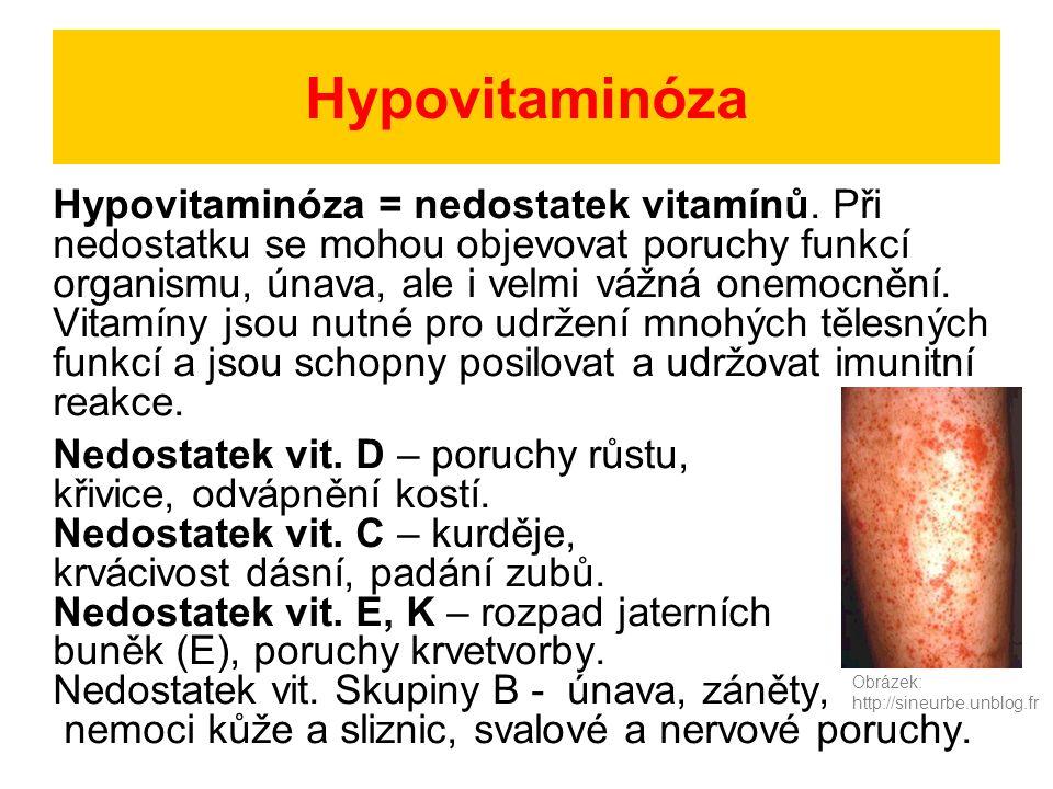 Hypovitaminóza Hypovitaminóza = nedostatek vitamínů. Při nedostatku se mohou objevovat poruchy funkcí organismu, únava, ale i velmi vážná onemocnění.