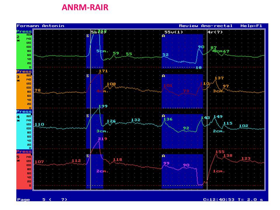 ANRM-RAIR