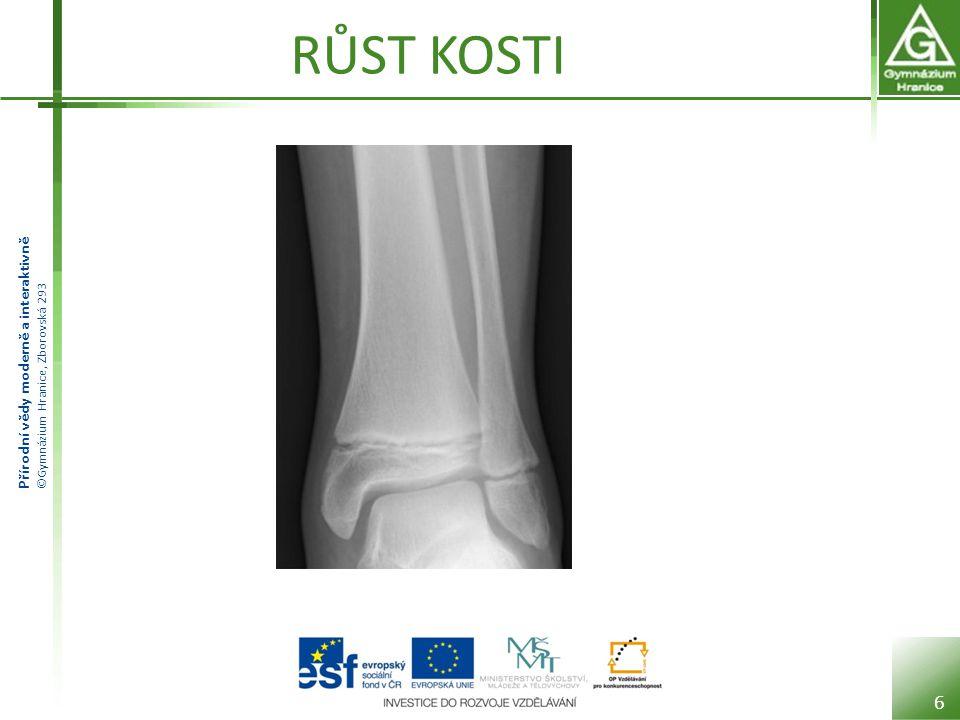 Přírodní vědy moderně a interaktivně ©Gymnázium Hranice, Zborovská 293 RŮST KOSTI 6